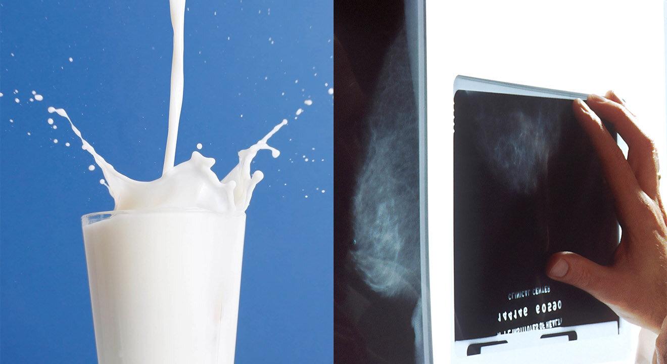 Collage Milch und Brustscreening